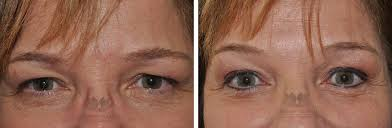 before u0026 after permanent eyeliner tattoo eye doctor orlando
