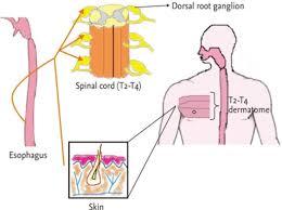 Visceral Somatic Reflex Viscerosomatic Reflex Of The Esophagus Open I