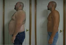 before and after weight loss u2013 extreme weight loss plan