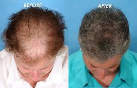 dermasculpt skin and hair clinic hair loss clinic in bangalore