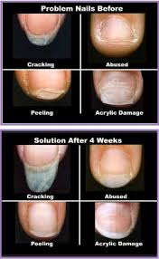 prostrong advanced nail care products nail problems biofusion