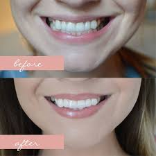 pro light dental whitening system reviews 71 best teeth whitening before after results images on pinterest