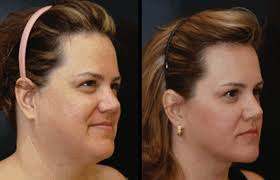 hairstyles for women with a double chin and round face how to reduce double chin health unify