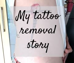 my tattoo removal story part one golly miss holly