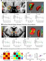 cannabis use is quantitatively associated with nucleus accumbens