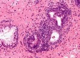 leucociti a tappeto leucociti nello cosa comporta la loro presenza