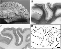 Gross Anatomy Of The Brain And Cranial Nerves Pdf Correlated Size Variations In Human Visual Cortex Lateral