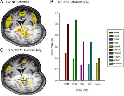 real time functional magnetic resonance imaging neurofeedback for