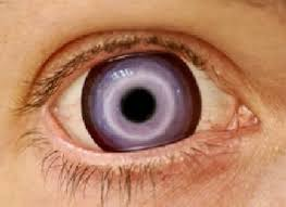 freaky contact lenses scary contact lenses16 scary contact