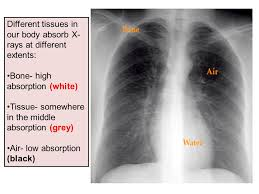 Radiology Anatomy Radiological Anatomy Of Thorax Ppt Video Online Download