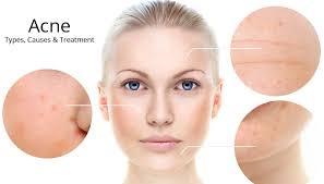 light treatment for skin acne removal omnilaser led light treatment tiffiny yang