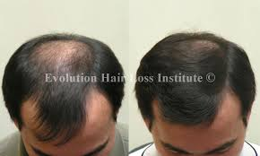 laser hair regrowth before and after om hair