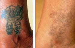 laser tattoo removal treatment in delhi