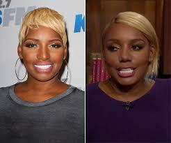 tamar braxton nose job before after pics nene leakes nose job see her shocking new look after second
