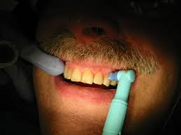 How To Whiten Kids Teeth Tooth Polishing Wikipedia