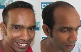 dhi hair transplant reviews dhi sri lanka hair transplant hair loss treatments