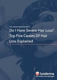 download hair loss ebook ebook download do i have severe hair loss top five causes of hair