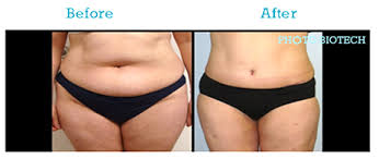 lipo light laser treatment reviews before and after