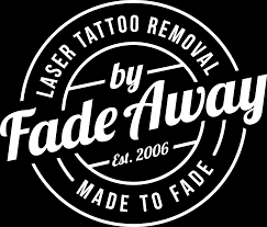 fade away laser tattoo removal free consultations affordable