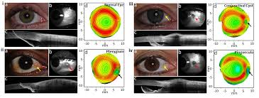 imaging of the eye contact lens and visual optics laboratory
