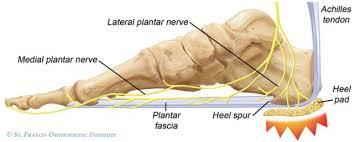Os Calcaneus Bruised Heel Fat Pad Contusion Symptoms Treatment U0026 Taping