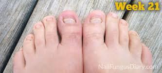 nail fungus update may 2015 nail fungus diary