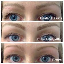 Eyebrow Tattoo Before And After Blonde Eyebrow Tattoo Healed Pink Clinic