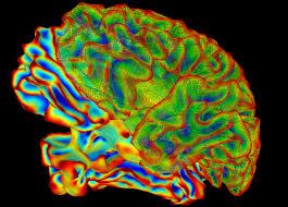 Image Of Brain Anatomy Yoga Practice May Improve Pain Tolerance And Alter Brain Anatomy