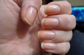nail care to prevent pale nails knowzzle
