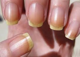 you can never imagine what nails can tell about your health