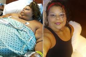 lupe from my 600 lb life my 600lb life weight loss transformations who lost 500lbs after