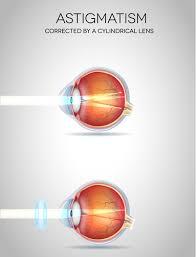 Astigmatism Night Blindness Astigmatism Eye Health Central