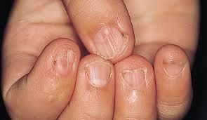 biology does nail biting indicate iron deficiency skeptics