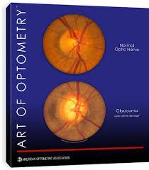 aoa marketplace eyecare pamphlets forms coding and other