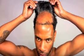 men hair weave pictures man weave unbeweavable trend men have adopted video guardian