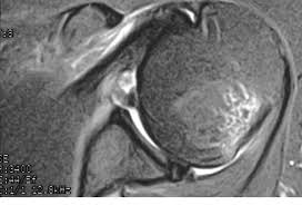Axial Shoulder Anatomy Mri Quiz Axial Shoulder View Post Anterior Shoulder Dislocation
