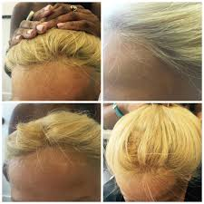 Vancouver Hair Extensions by Pacific Hair Extensions And Hair Replacement Vancouver Bc 810