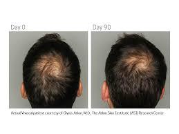 viviscal before and after hair length afro amazon com viviscal man maximum strength hair nourishment system