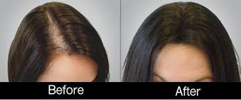 How Does Light Therapy Work 2 Answers What Is Hair Therapy