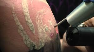 tattoo removal utah cost januari 2017 natural tattoo removal aloe vera