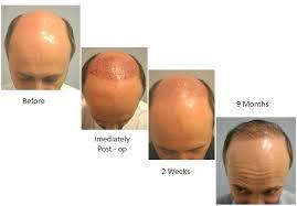 neograft recovery timeline hair restoration dr walter tom