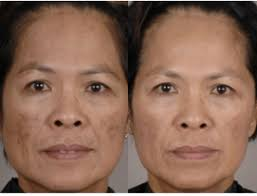 intense pulsed light therapy ipl intense pulsed light photofacial vancouver bc
