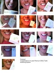 luster pro light teeth whitening system reviews luster premium white no distinct change after 12 applications
