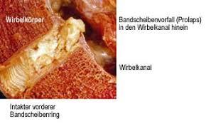 fußheberschwäche ursache mikrodiskotomie universität regensburg