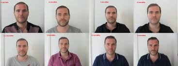 hair transplant month by month pictures dr hasson 1755 grafts to front and smp to crown page 5 forum