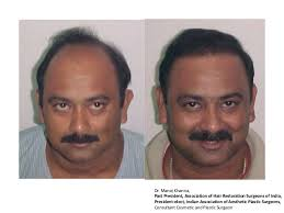 india hair before and after hair transplant india hair transplant delhi kolkat