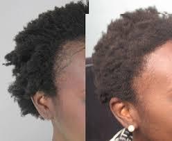 hairline restoration for black men women s hair transplant in los angeles