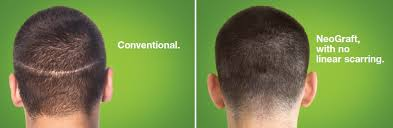 neograft recovery timeline hair transplant technology health wellness colorado