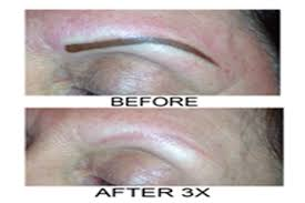 laser tattoo removal realistic brows