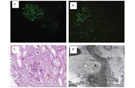 a case of membranous nephropathy and myeloperoxidase anti